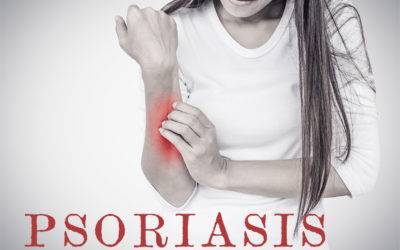 Psoriasis – What is that?