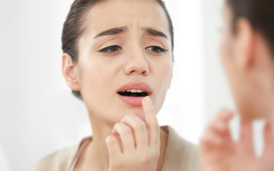 Cold Sores – What are they?