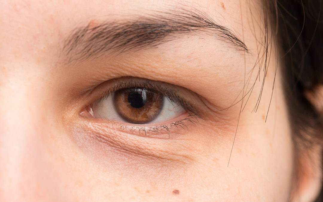Revealing the truth about Dark Circles
