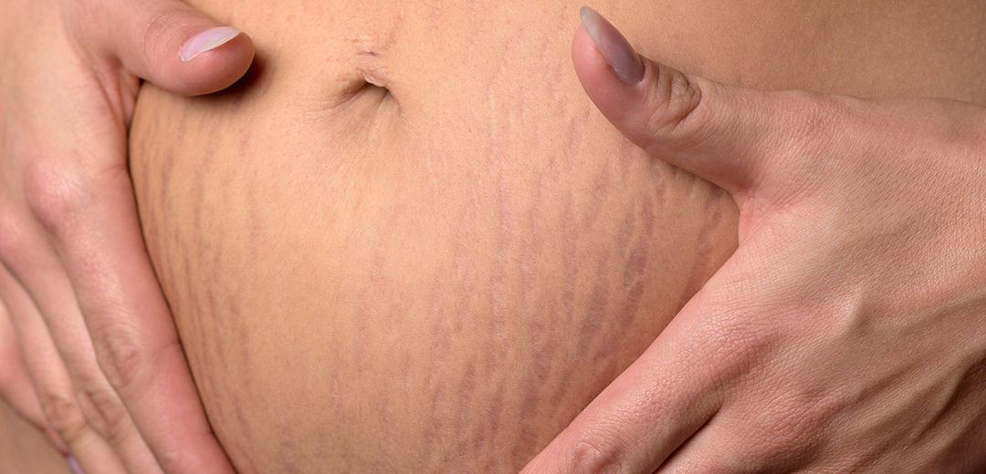 How to treat Stretch Marks